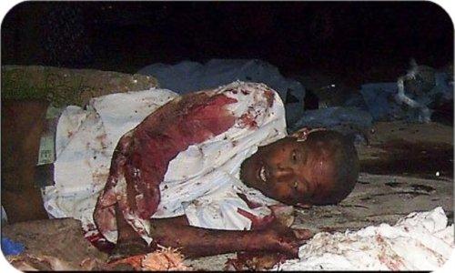 etioper.jpg